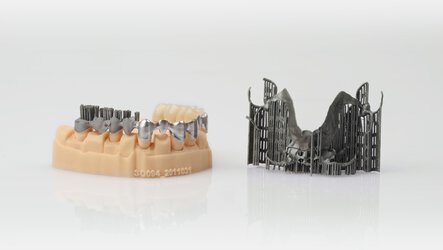 Dental model with three production steps (printing, polishing and finishing) of dental bridges and a denture still with support structures | © EOS
