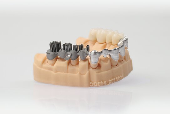Dental model with 3 production steps (printing, polishing, veneering) | © EOS